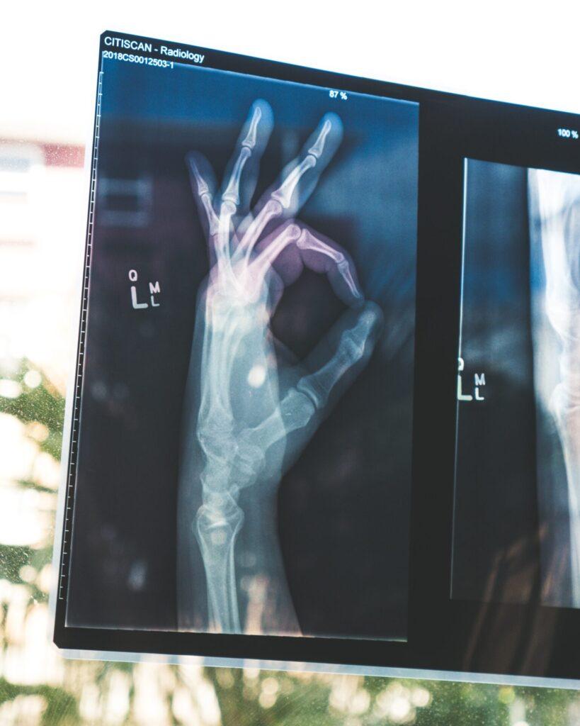 Röntgenkuva kädestä